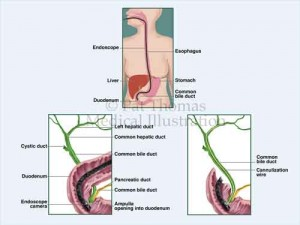 ERCP endoscopy