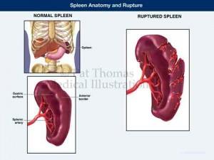 Spleen rupture