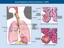 ARDS aspiration Respiratory distress