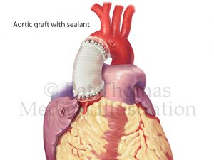 Aortic aneurysm graft sealant