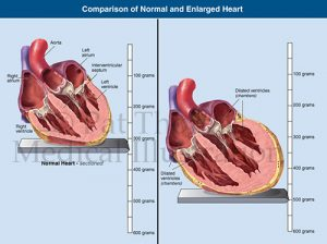 Cardiac hypertrophy enlarged heart