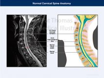 Cervical spine section