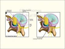 Compressed spinal nerve