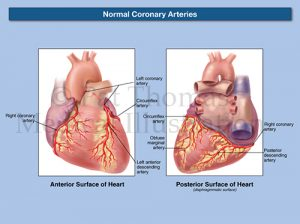 Coronary arteries 02