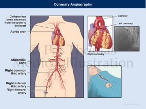 Coronary catherization angiography