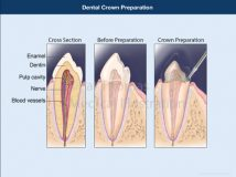 Dental Crown Preparation
