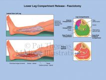 Fasciotomy compartments