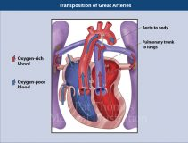 Transposition great arteries