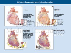 Cardiac tamponade pericardiocentisis