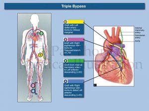 Coronary bypass CABG