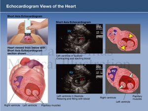 Echocardiogram infant