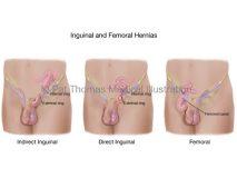 inguinal femoral hernias types