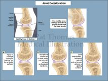 knee joint deterioration