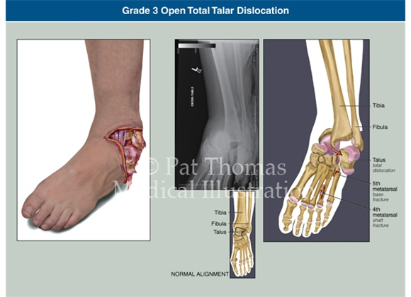 Ankle injury with open dislocation