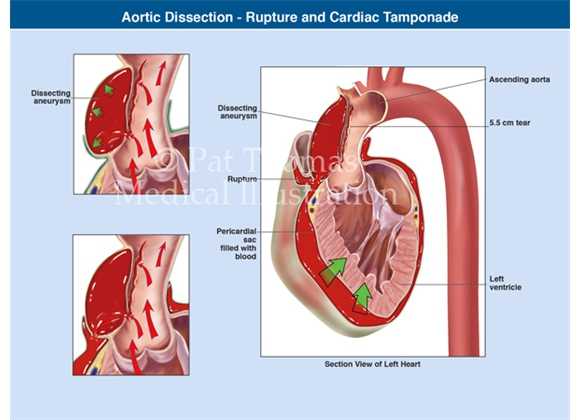 Aortic dissection with cardiac tamponade