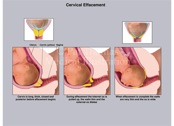 Cervical effacement during labor