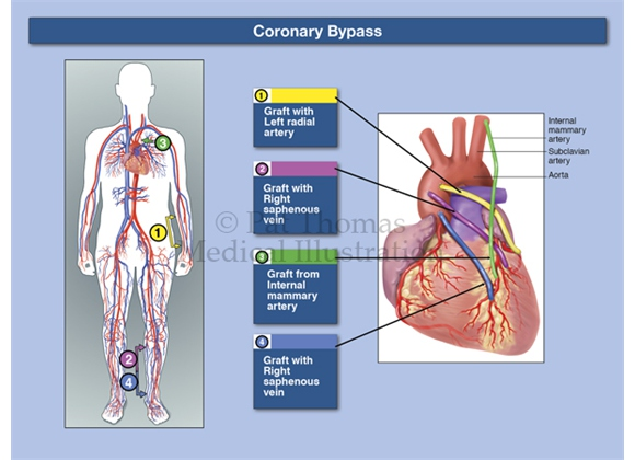 Coronary bypass graft source locations
