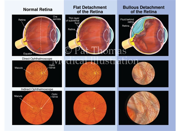 Detached retina – flat versus bullous