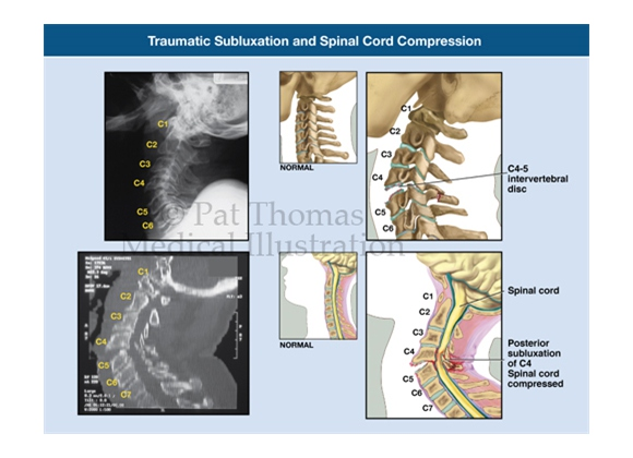Cervical spine subluxation at C5