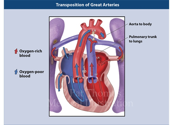 Transposition of the great arteries (TGA) in the pediatric heart