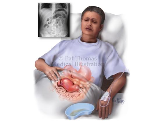 Gastrointestinal obstruction