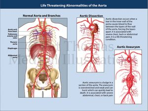 Aortic aneurysms dissection