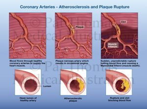 Artherosclerosis infarct