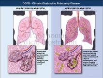 COPD pulmonary disease