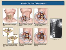 Cervical anterior fusion