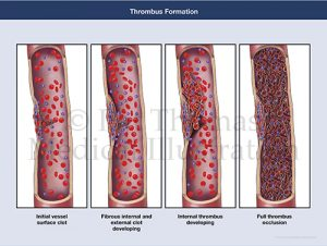 Clot thrombus formation