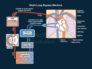 Heart lung machine