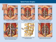 Lumbar fusion posterior