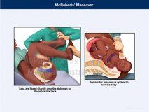 McRoberts maneuver shoulder dystocia