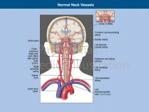 Neck arteries to brain