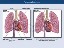 Pulmonary embolism heart failure