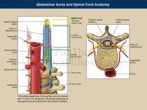 Spinal Artery of Adamkiewicz