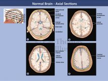 brain axial sections