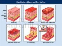 burn classification grafting