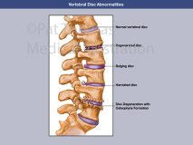 Lumbar discs abnormal