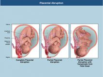 placental abruption