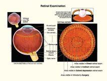 retina exams